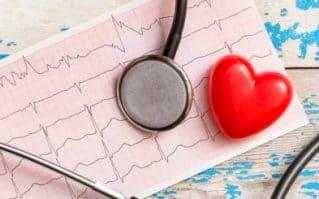 сердечная аритмия при всд