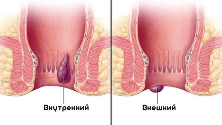 гемморой