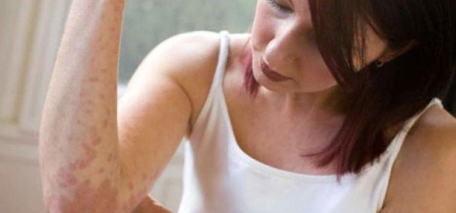Аллергия от нервов (нейродермит) – причины, симптомы, как избавиться