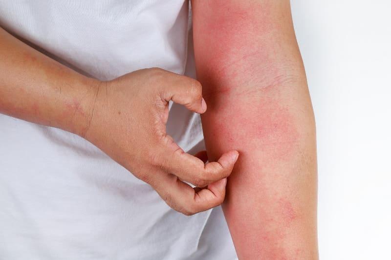 аллергия, зуд