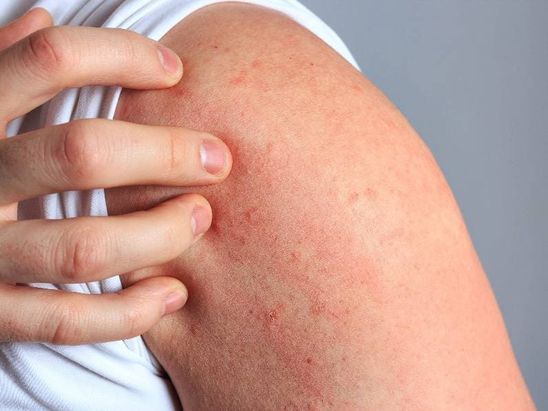 Нейродермит (аллергия на нервной почве),