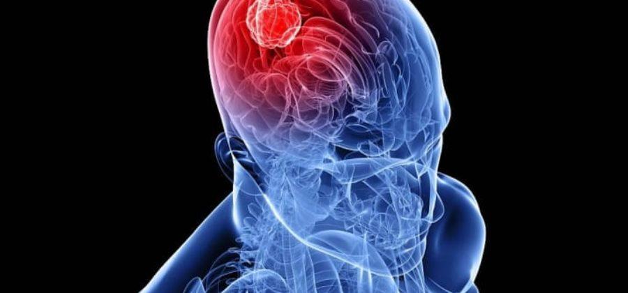 Метастазы рака в головной мозг