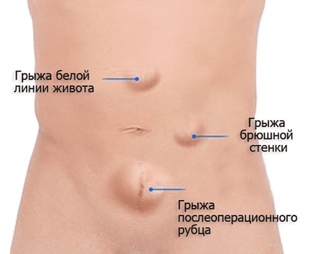 грыжи брюшной полости